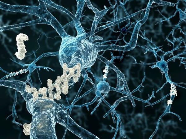 Zlom vo výskume mozgu: