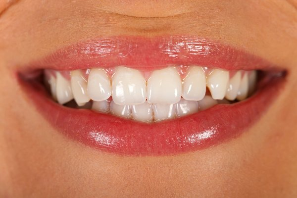 Bielením zubov k POLEPTANIU